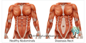 Healthy Abs vs Diastasis Recti